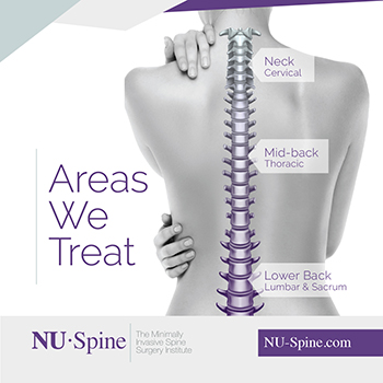 Areas We Treat - Advanced Spine Center in New Jersey